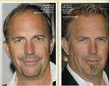 Kevin Costner complément capillaire